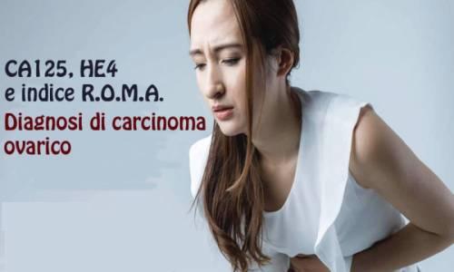 CarcinomaOvarico-A